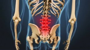Lower Back Pain f rom Osteoarthritis